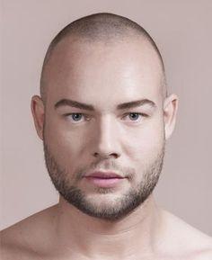 Raoul van der Heijden (27)  Laat voorhoofd,fronsrimpels, lachrimpels, kraaienpootjes en lippen behandelen.