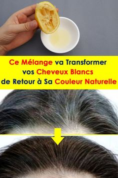 This blend will transform your white hair back to normal Ce Mélange . This blend will transform your white hair back to normal Ce Mélange va Transformer vos Cheveux Blancs Beauty Skin, Health And Beauty, Hair Beauty, Health Benefits Of Eggs, Hair Dandruff, Hair Care Recipes, Beauty Tips For Teens, Hair Color And Cut, Anti Aging