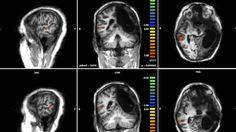 Le nuove frontiere del cervello: se l'emisfero destro aiuta il sinistro - La Stampa