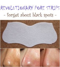 Revolutionary pore strips - forget about black spots