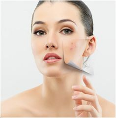 How To Prevent And Remove Pimples/Acne – 21 Effective Methods