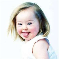 Image Search Results for down syndrome
