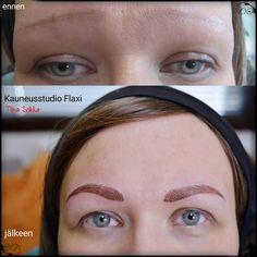 Alopecia-ennen ja  jälkeen