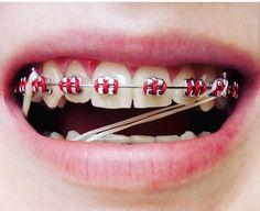 Braces Bands, Braces Tips, Braces Smile, Teeth Braces, Braces Transformation, Cute Braces Colors, Lingual Braces, Getting Braces, Brace Face