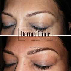 Touch up over old permanent makeup. Hairstrokes added to create dimension and a rich colour.