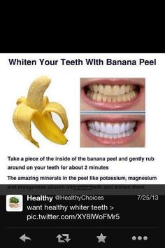 Yes banana peels will whiten your teeth better than almost anything else you can try. Banana peels and activated charcoal are the best things for getting your teeth the whitest they will ever be. Rub the banana peel on your teeths exposed surfaces. Teeth Whitening Remedies, Natural Teeth Whitening, Banana Teeth Whitening, Homemade Teeth Whitening, Natural Toothpaste, Beauty Care, Diy Beauty, Fashion Beauty, Beauty Stuff