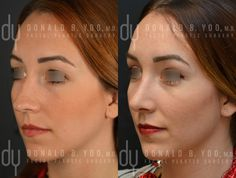 Before and After Primary Open Rhinoplasty and Septoplasty with dorsal hump reduction and tip refinement. #rhinoplasty #nosejob #plasticsurgery #beforeandafter #drdonyoo