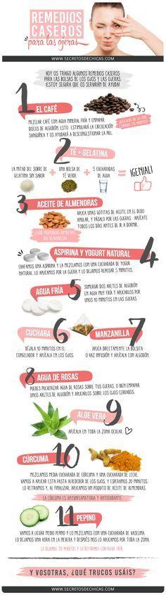 8 Remedios para Combatir Ojeras y Bolsas en los Ojos
