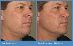 Ultrasound Skin Treatment Patient Results. Before and After Photos #Ultherapy