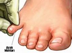 Remedies For Toenail Fungus 6 Effective Natural Cures For Toe Fungus Toenail Fungus Remedies, Toenail Fungus Treatment, Infection Fongique, Laser Eye Surgery Cost, Toe Fungus, Health Education, Natural Remedies, Loosing Weight