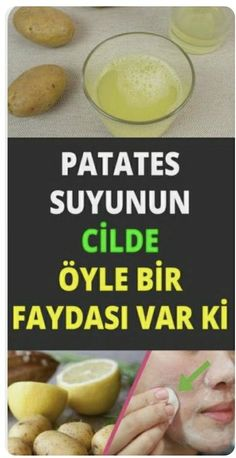 Salud Tutorial and Ideas Green Beans And Potatoes, Elcin Sangu, Homemade Skin Care, Diet And Nutrition, Natural Cures, Health And Wellness, The Cure, Hair Beauty, Personal Care