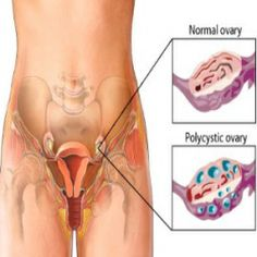 6 Herbal Remedies for PCOS