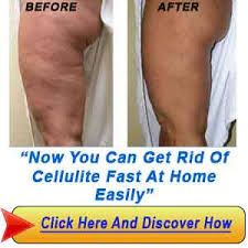 How to get rid of cellulite quickly