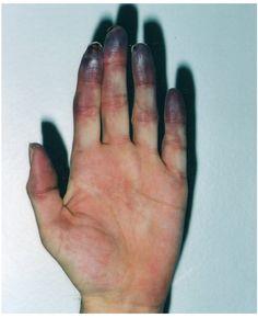 Esclerose sistêmica. Doença do tecido conjuntivo que afeta a pele, e algumas vezes os órgãos internos. É classificada como uma doença auto-imune devido ao fato de que o sistema imunológico é ativado para agredir os tecidos do próprio organismo. Existem dois tipos de esclerodermia: a forma sistêmica (esclerose sistêmica) que afeta os órgãos e sistemas internos do …