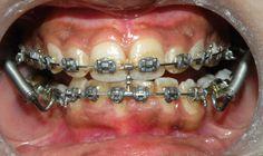 Braces Problems, Tao, Appliances, Beautiful, Orthodontics, Craft, Braces, Dental Braces, Gadgets