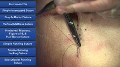 """""""Learn basic suture techniques from one of the top plastic surgery programs in the country. Demonstration of all the technical aspects you need to cosmetical. Homestead Survival, Survival Tips, Survival Skills, Survival Mode, Suture Kit, Pa School, Surgical Tech, Medical Assistant, Midwifery"""