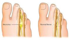 Morton's Neuroma- Causes, Symptoms, Diagnosis, Treatment and Ongoing care