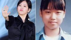 Dispatch Merilis 8 Artis Korea yang Terang-terangan Mengaku Operasi Plastik, Perubahannya Drastis!