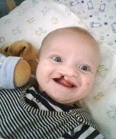 Cleft lip and palate in babies