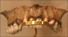 The beginnings: from Ancient Egypt, one of the most ancient dental prostheses (2500-2000 BC) www.drgregbowen.com, circa 2014