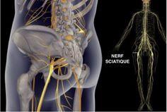 Traitements et conseils pour soulager les douleurs du nerf sciatique