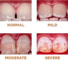 DENTAL FLUOROSIS: Mottling of tooth enamel Developmental disturbances dental enamel Caused by excessive exposure to high conce. Fluorosis Dental, Dental Hygiene School, Dental Hygienist, Dental Health, Dental Care, Dental Facts, Dental Implants, Dental Assistant Study, Dental Pictures