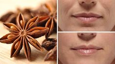 Many people have heard of expensive and often painful wrinkle-reducing treatments such as Botox, dermal fillers, dermabrasion and chemical peels. But there's a way to reduce the appearance of deep facial wrinkles in a way that's easy, Home Remedies, Natural Remedies, Homeopathic Remedies, Health Remedies, Creme Anti Age, Lemon Diet, Bush Beans, Anti Ride, Les Rides