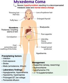 Image result for myxedema coma cartoon