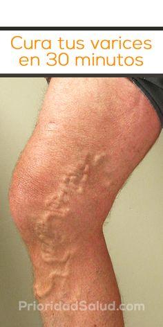 Remedios para eliminar las varices de las piernas sin ejercicios.