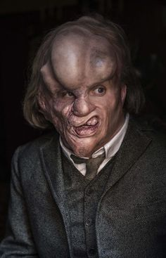 """John Merrick was a disfigured man who lived in Victorian London. The cause of his deformities was a serious case of Proteus Syndrome. He worked in a freakshow for a while billed as """"The Elephant Man"""" which is the name most people remember him by today."""