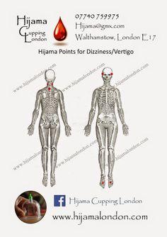 Hijama Cupping London E17 Hijama Cupping, Cupping Therapy, Hijama Points, Vertigo, Medicine, Remedies, Alternative, London, Acupuncture