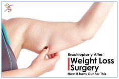 Brachioplasty after weight loss surgery – see how it turns out for this @BariatricPal member!