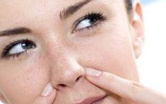 ŠIKOVNÝ TRIK NA ZBAVENIE SA ČIERNYCH BODIEK NAVŽDY Beauty Hacks, Beauty Tips, Hair Beauty, Skin Care, Fashion, Moda, Beauty Tricks, Fashion Styles, Skincare Routine