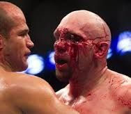 Image result for bloody/ufc/fight