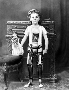 Studio photograph of a young girl wearing a pair of artificial legs. The legs were manufactured by James Gillingham (1839-1924), a boot- & shoemaker based in Chard, Somerset. Gillingham first started making artificial limbs after a local man lost an arm firing a cannon for a celebratory salute in 1863. He then began making prostheses on a permanent basis & Chard eventually became a major centre of the British artificial limb industry / Photo from the Science & Society Picture Library