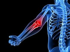 Tennis elbow exercises. Better than cortisone injection or rest. Take charge