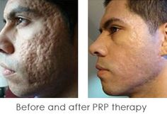 Before and After PRP Therapy