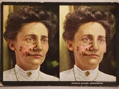 stereoscopic view of syphilis 1910