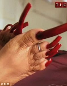 A woman who was once addicted to growing the nails on her hands has now grown her toenails to a staggering four inches