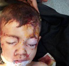 Recuperación milagrosa: El niño fue finalmente trasladado al Hospital de Mártir Sauod en Homs, donde los cirujanos quitaron el trozo de metal de presentado por encima de su ojo izquierdo