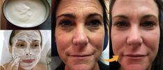 Receita de botox caseiro para o rosto: rejuvenesce e elimina rugas rápido Natural Hair Mask, Acne And Pimples, Rides Front, Les Rides, Wrinkle Remover, Face Cleanser, Tricks, Beauty Hacks, Health And Beauty
