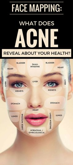 Face Mapping: What Does Acne Reveal About Your Health? - healthious.org