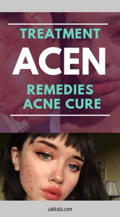 Acne and Pimples Remedies. All-natural methods to get rid of and avoid Acne. Natural Acne Treatment, Acne Spot Treatment, Natural Acne Remedies, Home Remedies For Acne, Acne Treatments, Pimples Remedies, Cellulite Remedies, Eczema Remedies, Skin Care Remedies