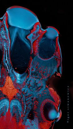 Jumping spider's eyes in confocal microscope