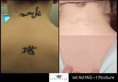 Reset Room - Before & After Photos of Picosure Laser Tattoo Removal