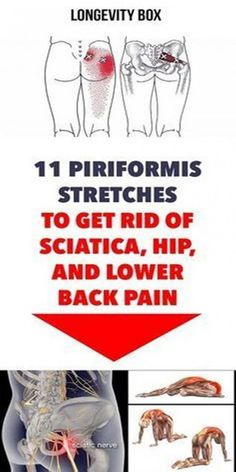11 PIRIFORMIS STRETCHES TO GET RID OF SCIATICA HIP AND LOWER BACK PAIN #Backpain Fitness Hacks, Fitness Workouts, Health Fitness, Fitness Memes, Sciatic Pain, Sciatic Nerve, Nerve Pain, Sciatica Exercises, Hip Stretches