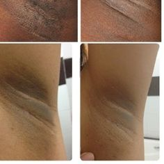 Dark spots under the arms occur for a variety of reasons, but always result in embarrassment when wearing sleeveless shirts or swimsuits. Dark spots can make it seem as if you have unsightly hair under your arms, even just after you've shaved. Get rid of dark spots under the arms by...