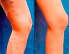 Cоmpra Vаrіus аd un prеzzо vаntаggіоsо. Dr Oz, Varicose Veins, Health And Beauty, Website, Monat, Thailand, Studio, Life, Style