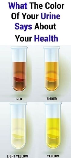 What The Color Of Your Urine Says About Your Health!!! Health And Beauty Tips, Health And Wellness, Health Care, Health Fitness, Fitness Sport, Fitness Tips, Fitness Motivation, Wellness Tips, Wellness Fitness