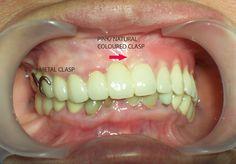 24 Best Dentures images | Dentures Cosmetic dentistry Dental
